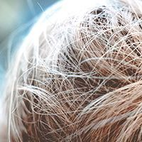 A human hair is typically 100 microns diameter